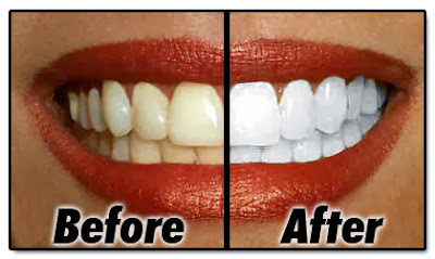 Welcome To MyHOODGist: Nourishments That Can Whiten Your Teeth Naturally.