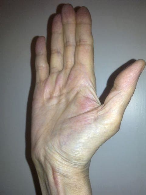 Wrist In Plaster Cast Or Finger Injury How To Remove Stiffness Or