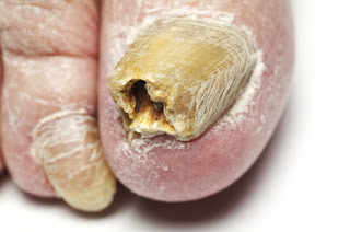 home toenail fungus treatment