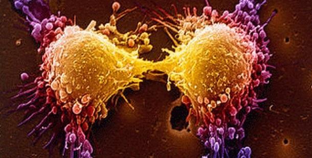 7 coisas que você precisa saber sobre o cancro