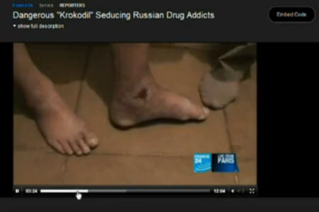 Krokodil Drug YouTube http://news.gather.com/viewArticle.action?articleId=281474981376111