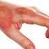 Fisioterapia Dermato Funcional em tratamento de queimaduras