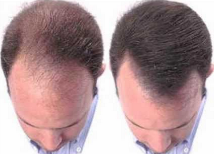 8 Natural Solutions For Male Pattern Baldness And Regrowth