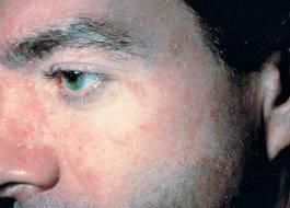 Melatonin au psoriasis