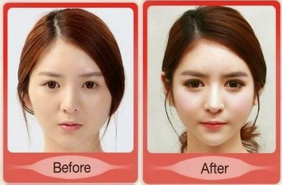 Korean girl Plastic Surgery