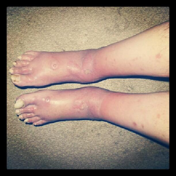 infeccion piel: