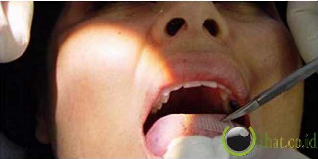 Pasang Jebakan di lidah