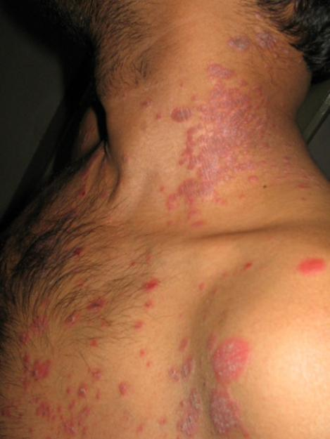 How To Get Rid Psoriasis Psoriasis Painful Skin Disease. Best Industrial Engineering Schools. University Of Baltimore College Park. What Is Six Sigma Black Belt Certification. Signs Symptoms Of Depression. Small Business Insurance Online Quote. Open Stock Trading Account Health Care Grant. Contingent Cargo Insurance For Freight Brokers. Cloud Backup For Android Hilton Head Sc Beach