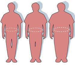 Obesidad y enfermedad hepatica grasa (nafld)
