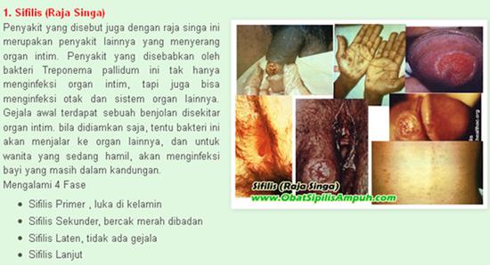 Nama Antibiotik Obat Sipilis