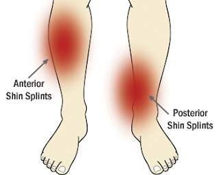 Shin Splint Pain Locations