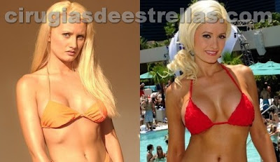 holly madison antes y despues