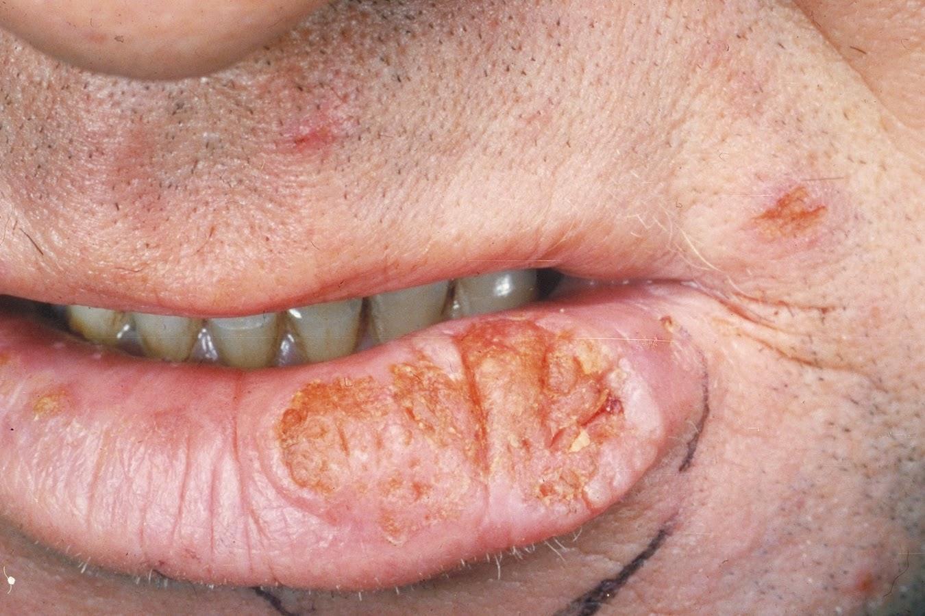 Fluorouracil lip