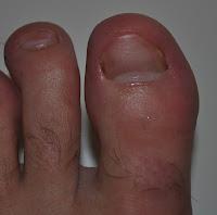 Vad är nagelsvamp