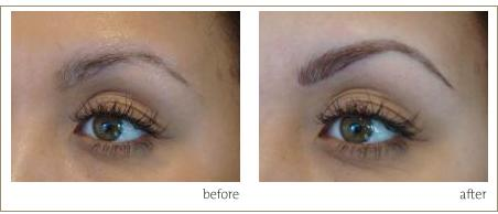 Eyebrow tattoo in london uk before and after eyebrow surgery for Can you get a tattoo before surgery