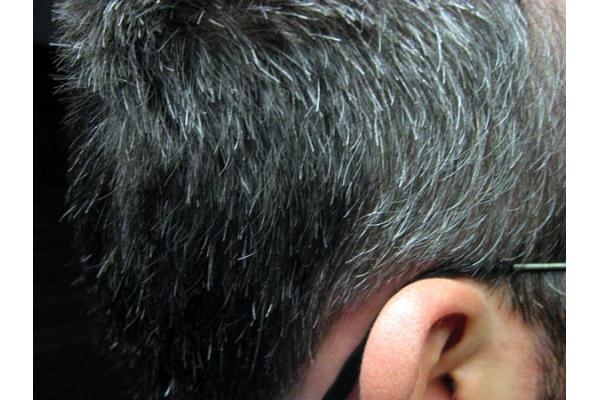 Cambios en el cabello y en las uñas por el envejecimiento