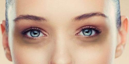 cara menghilangkan mata panda pada wajah