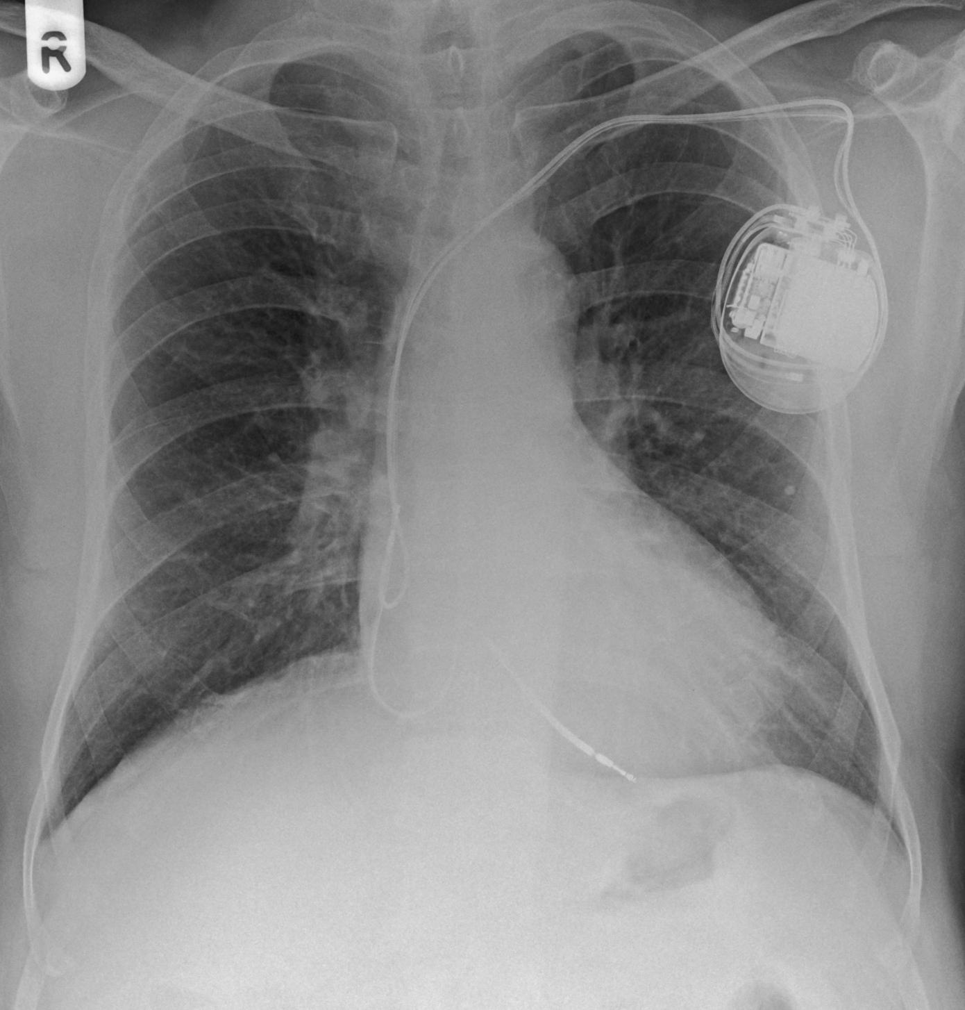 Radiografia com pacemaker e eléctrodos.