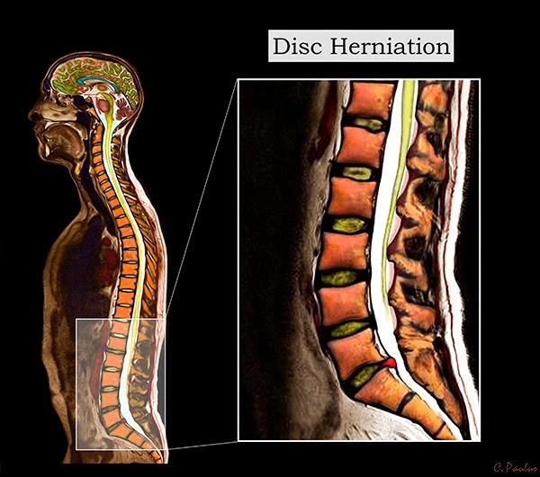 3-D Color MRI of the Lumbar Spine demonstrating a Disc Herniation