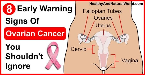8 Early Signs Of Ovarian Cancer
