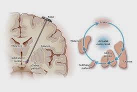 Pencegahan Dan Pengobatan Penyakit Parkinson