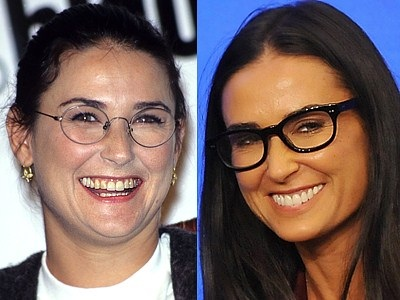 Chatter Busy: Demi Moore Before And After
