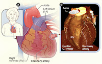 Cardiac asthma Causes, Symptoms, Diagnosis and Treatment