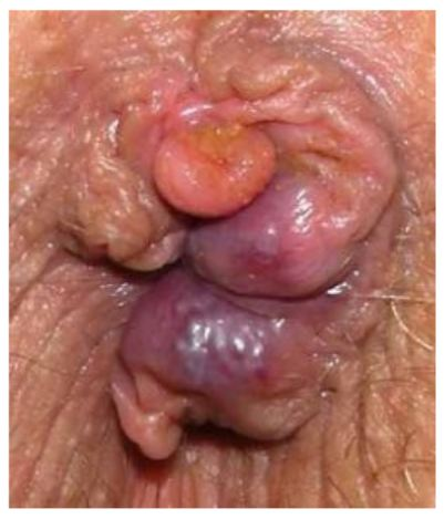 Infection from anal fissure