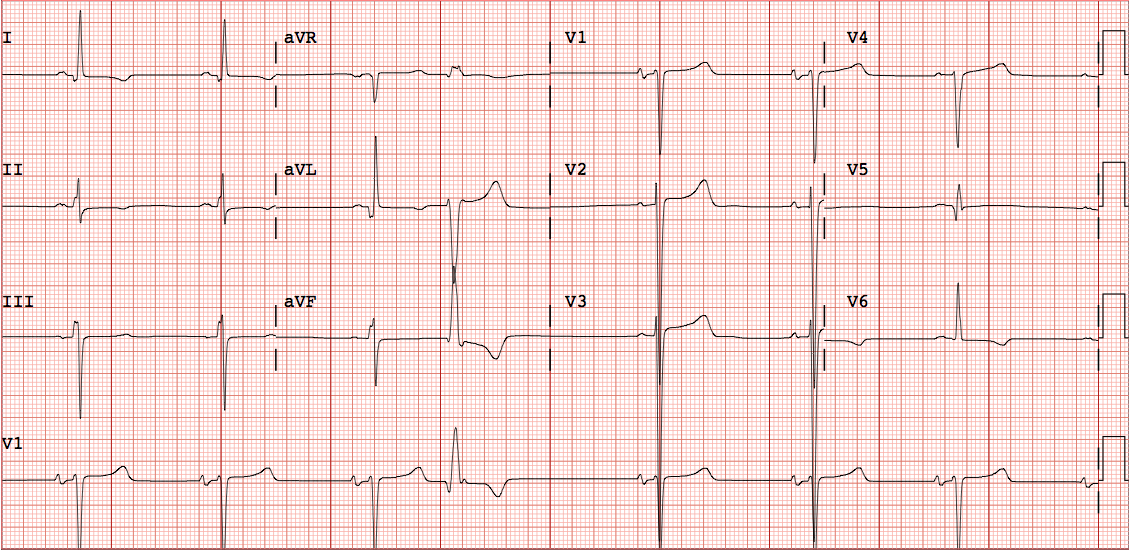 dr smiths ecg blog lvh and new stsegment elevation