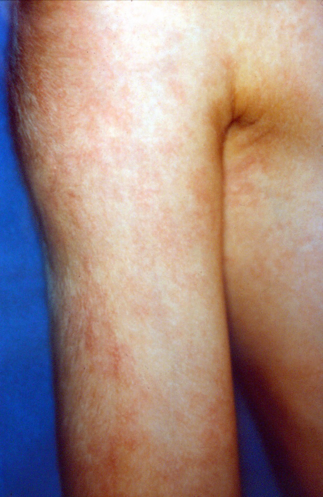 Mottled Skin - Pictures, What is, Causes, Treatment, Diagnosis