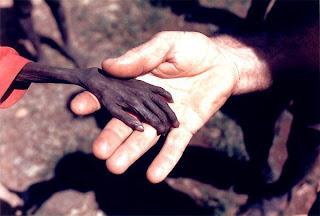 انظروا الى حجم يد هذا الطفل الصومالي
