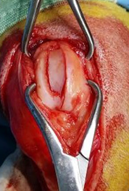 osteotomía cuña femur canino