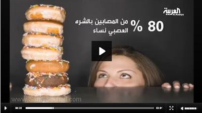 دراسة: 80% من المصابين بالشره العصبي نساء (فيديو)