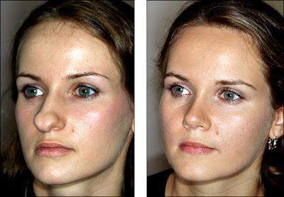 rawatan untuk hidung menjadi lebih cantik