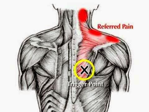 Body Matters Diy Acupressure Shoulder Blade Rhomboid
