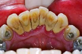 Karang Gigi Hitam dan Cara Menghilangkannya