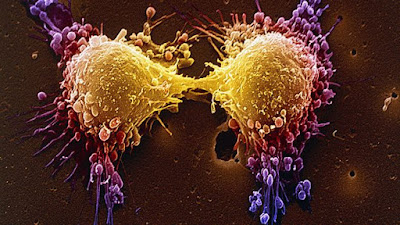 Nova terapia genética faz células de câncer cometerem 'suicídio'