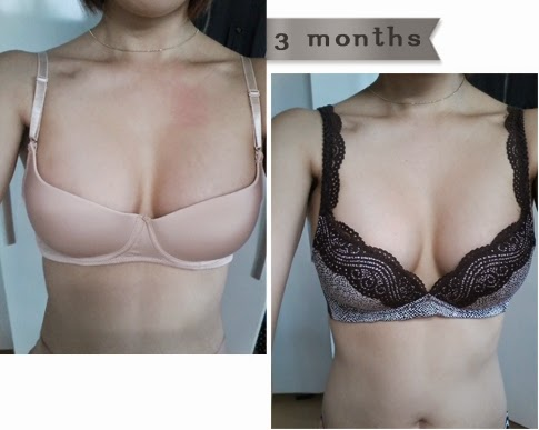 breast plastic surgery after photos-7