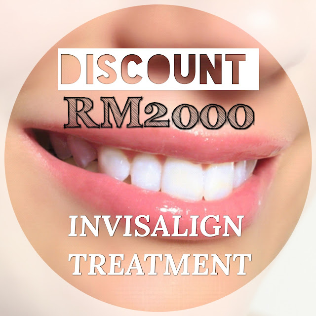 Discount RM2000 Invisalign Treatment
