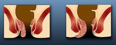 Aιμορροΐδες αντιμετώπιση ανακουφιση συμπτώματα