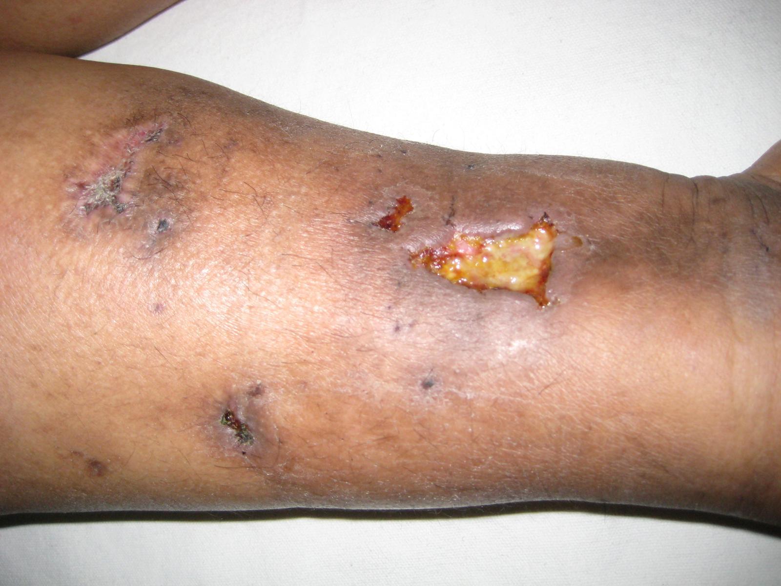 La trombosis del vaso del pie