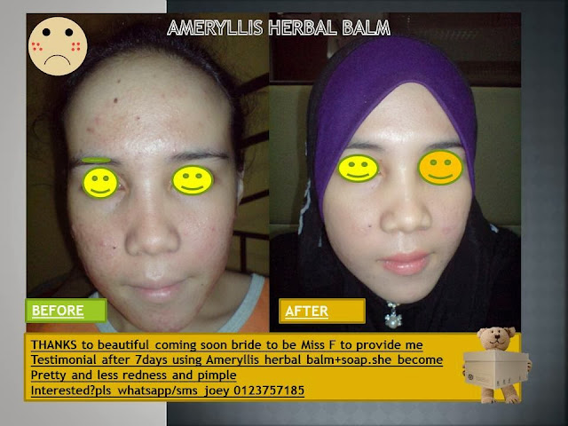 testimonial from happy bride customer after use herbal balm and bitter gourd soap in 7 days