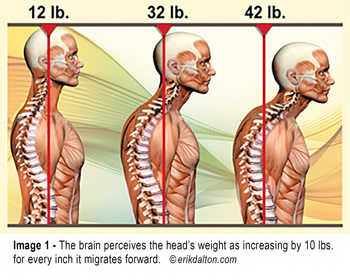 'Text neck' is becoming an 'epidemic' and could wreck your spine.