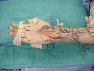 pembedahan CTS