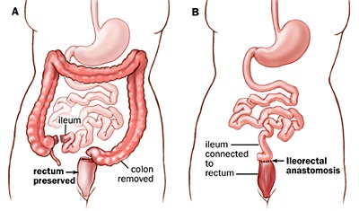 It Takes Guts Total Colectomy With Ilecorectal Anastomosis