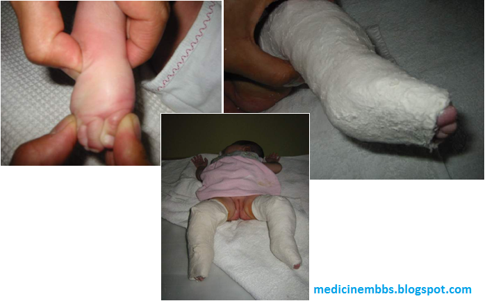 the characteristics of clubfoot a congenital foot deformity Congenital talipes equinovarus, also known as club foot, is a congenital foot deformity present at birth it is one of the most common congenital deformities incidence varies between ethnic groups.