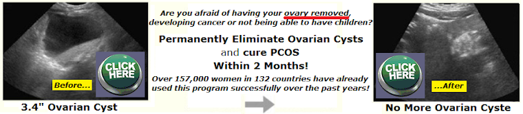 Ovarian cysts can mean cancer of the ovary