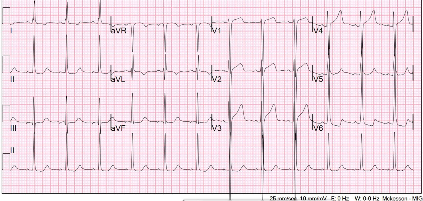 Dr. Smith's ECG Blog: Is this Acute Ischemia? More on LVH.