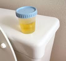 síntomas característicos de infecciones del tracto urinario