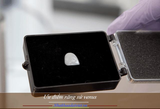 Răng sứ Venus có khả năng chịu lực cao hơn nhiều lần so với răng thật và hoàn toàn đảm bảo về chức năng ăn nhai bền chắc. Khả năng tương thích sinh học của chất liệu sứ làm răng sứ Venus cũng rất tốt, hoàn toàn an toàn với con người, đáp ứng các tiêu chuẩn ISO, CE.